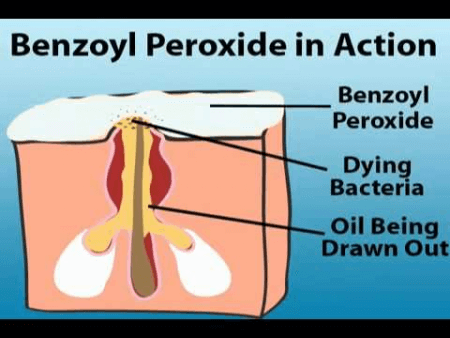 diagram showing how benzoyl peroxide