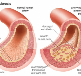 Difference between Atherosclerosis and Arteriosclerosis