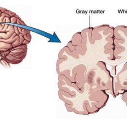 Difference between White and Gray Matter