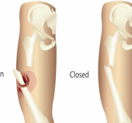 Difference between an Open and a Closed Fracture