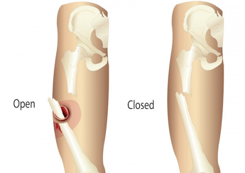 open and a closed fractures