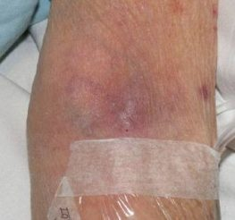 Difference Between Phlebitis and Infiltration